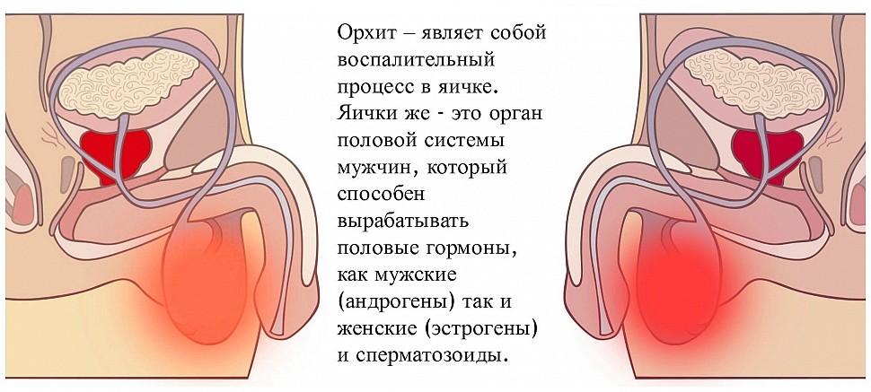 простатита боли в яичках
