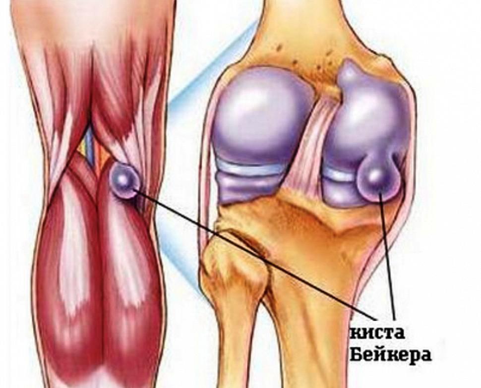 Миакальцик остеопороз лечение