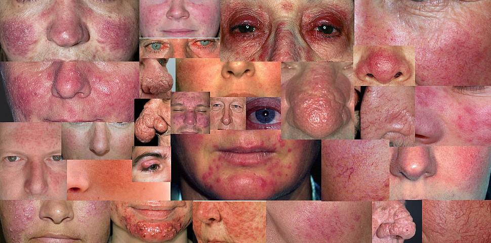 Disease facial skin — img 11