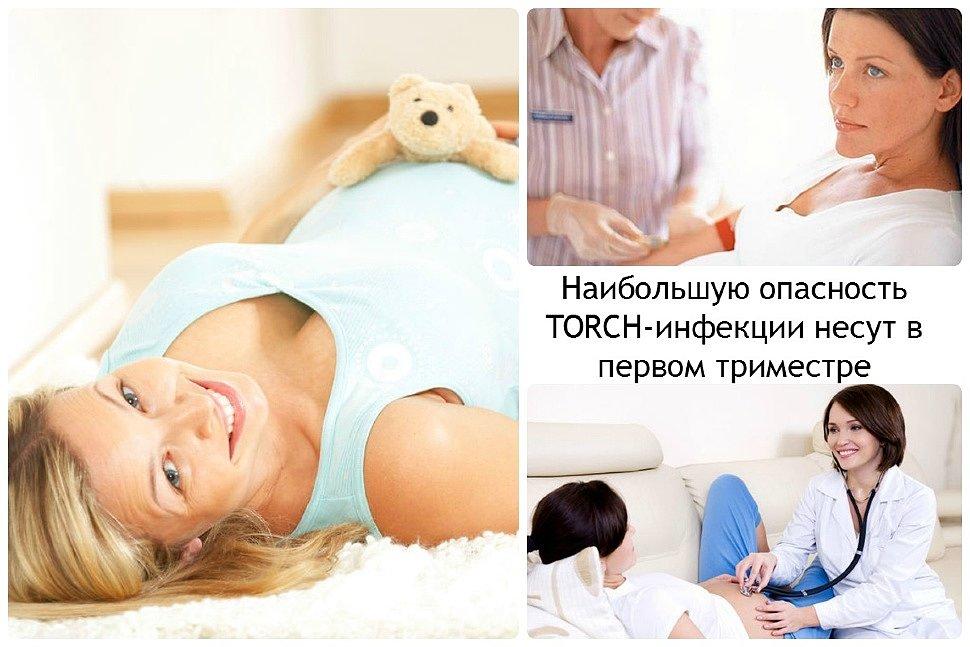 Что такое TORCH-инфекции?