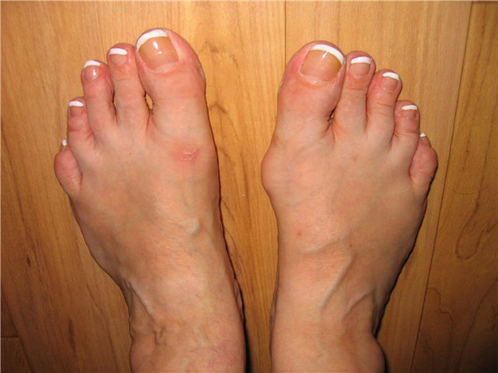 Лечение косточки на ноге в ... - FB.ru