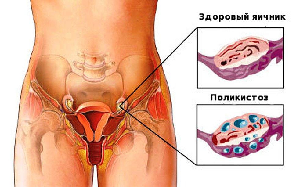 """О Лекарствах """" Женские болезни: поликистоз яичников"""
