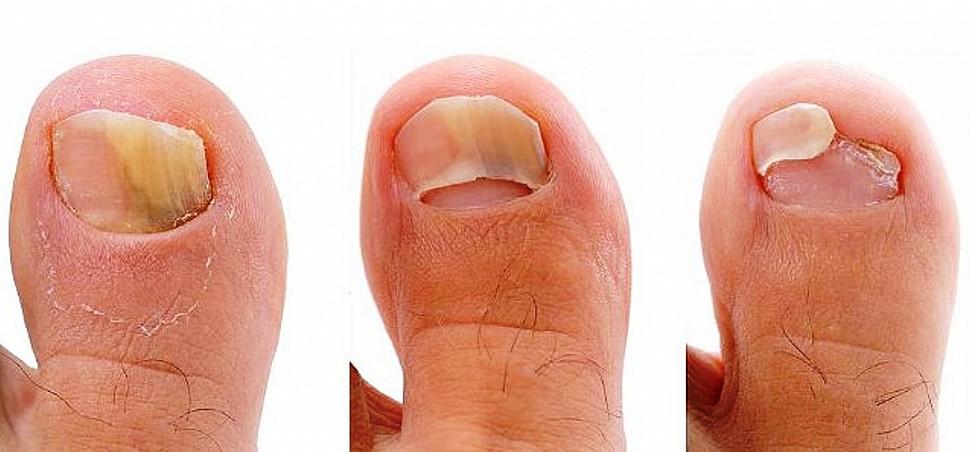 Фото грибка ногтя на ноге