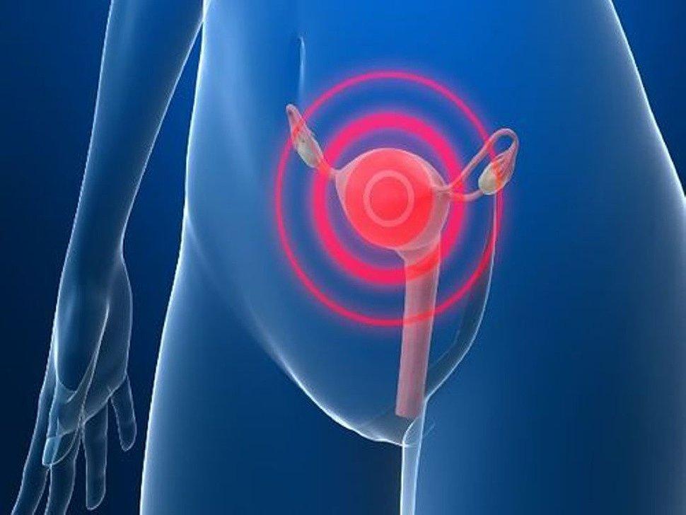 Слабое кровотечение матки - Крепкое здоровье