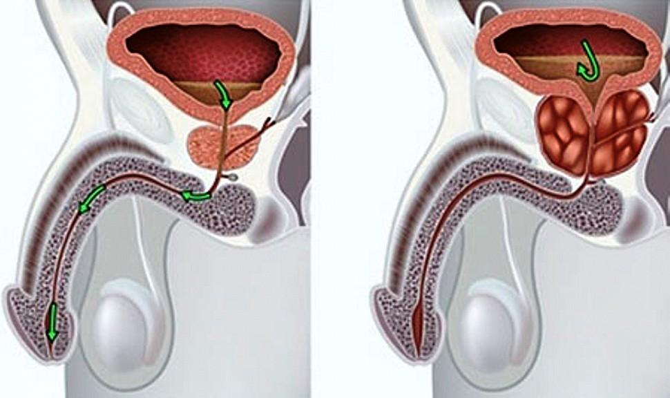 аденома простаты способствует развитию орхита и эпидидимита