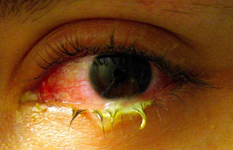 выделения при гонорее глаз