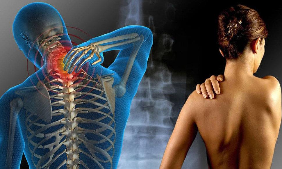 Как отличить остеохондроз от фибромиалгии