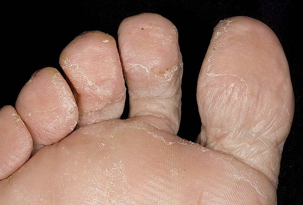 Микозы стоп грибок ногтей и кожи лечение