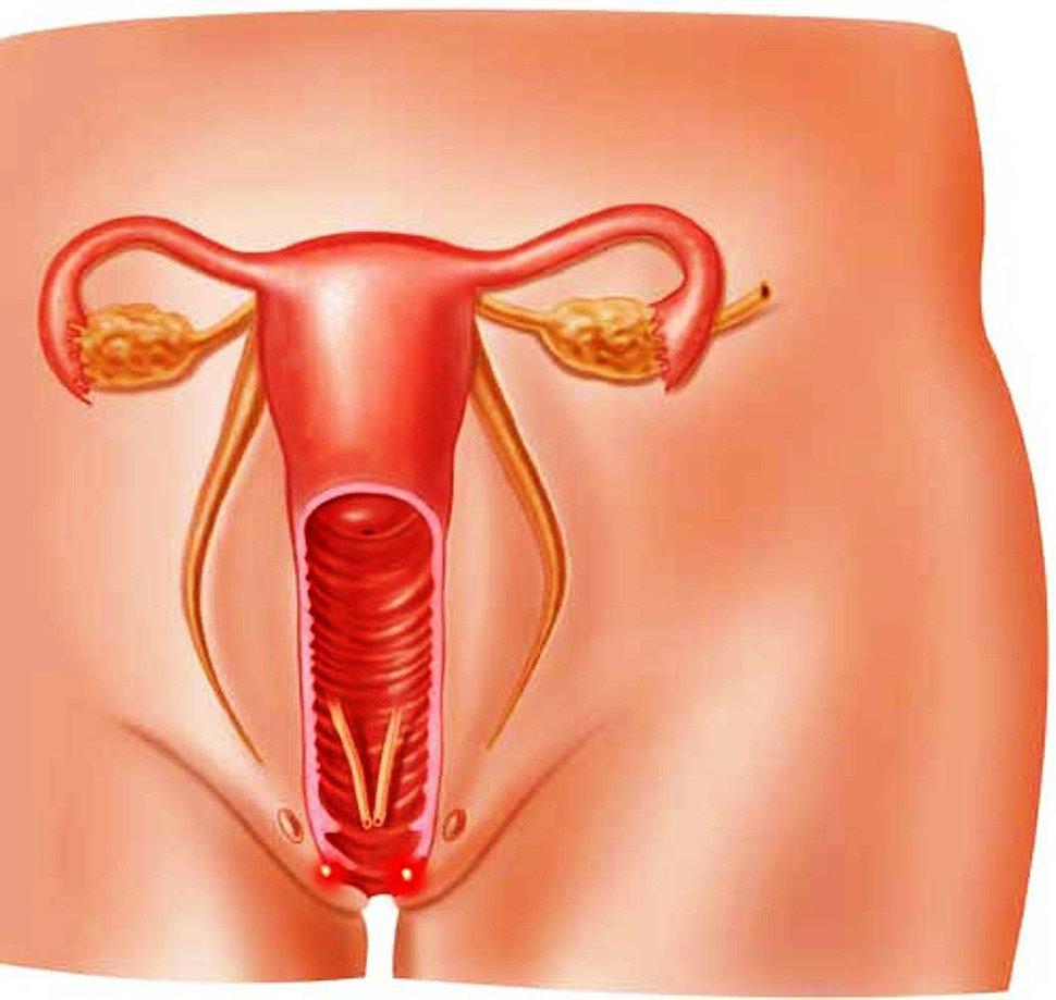 Могут ли эпительные клетки из влагалища попадать в уретру
