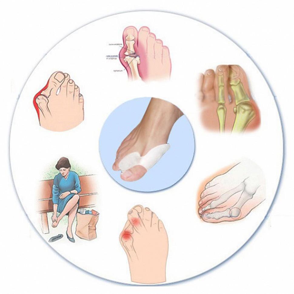 Болят вены на ступне ноги