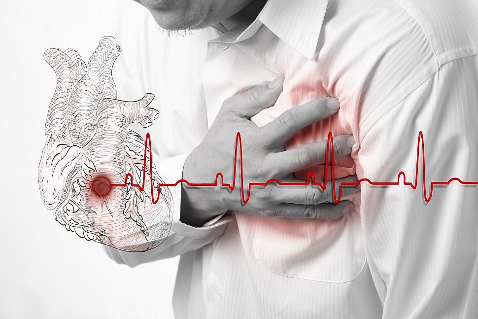 Плавание при аритмии сердца