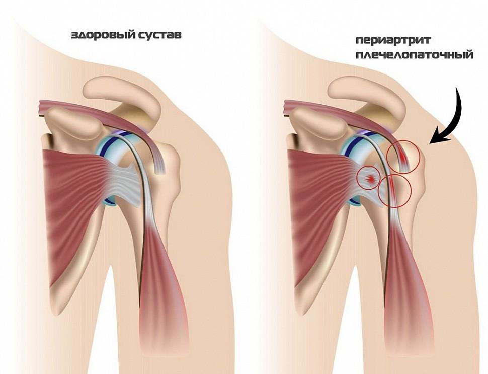 Болезни плечевого сустава симптомы и лечение